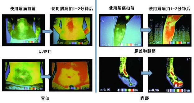 Infrared images of Back Spine, Stomach, Foot, and Knee and Leg<br />